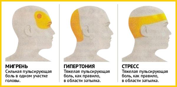 Почему болит голова при пониженном давлении